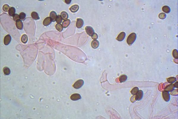 agaricus-campestris-basidi-1000-2-copiaD3B52CDF-ADF0-1EC3-72B4-C714D2F89CF7.jpg