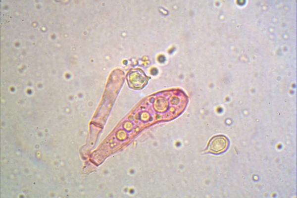 entoloma-sepium-basidi-1000-2-copiaDFFDE12E-E358-344F-8842-3AC78FD7C7AF.jpg