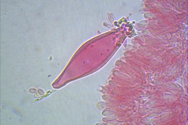 strobilurus-esculentus-cistidi-1000-9-copia2CE15799-705E-EBDE-2836-330E605A578F.jpg