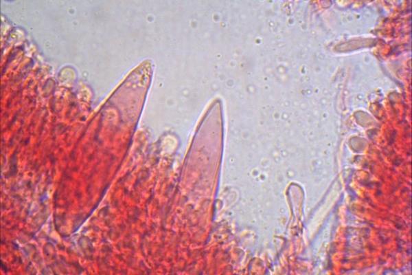 strobilurus-tenacellu-cistidi-1000-1-0-copiaBCD59A9C-2DCB-F3CD-FF32-DC807CBA5018.jpg