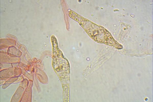 boletus-luridus-cheilo-1000-3-copia077C4D5C-5C40-515A-29E9-153E4FBA7440.jpg