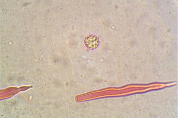 lactarius-volemus-1000-6-copia97DAE169-A288-4B30-B573-A9B7CCEE10CB.jpg