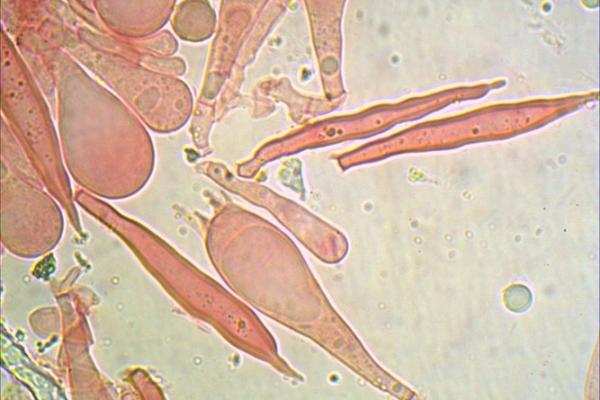lactarius-volemus-basidi-1000-3-copia9E3AAC84-644B-DBE2-0105-866A56EC2DCE.jpg